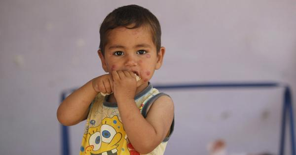 Explainer: What is the 'flesh-eating' disease that's spreading across Syria