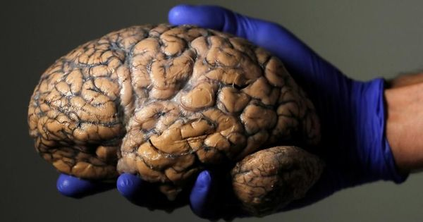 Watch: This hospital has the world's largest collection of human brains