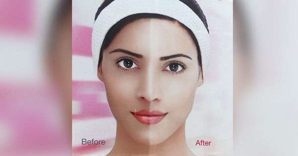 Skin lightening: India's obsession that is becoming a medical problem