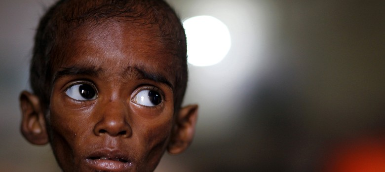 This Indian child deserves your attention as much as the Syrian boy