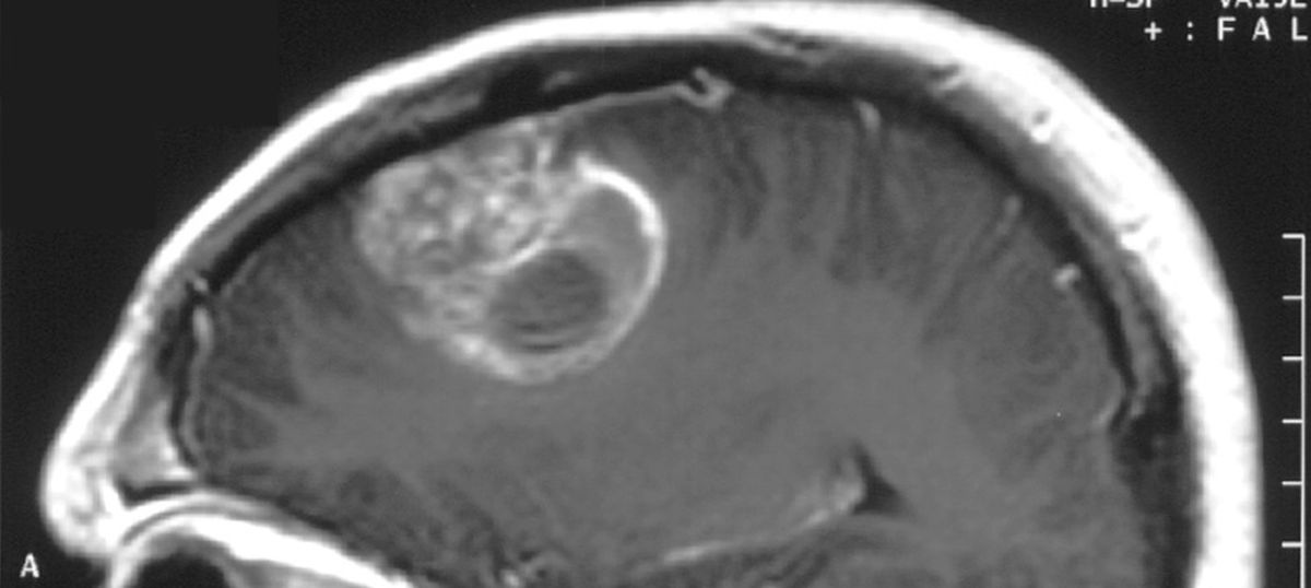 How Bangalore scientists are slowly cracking one of the toughest cancer mysteries – the glioblastoma