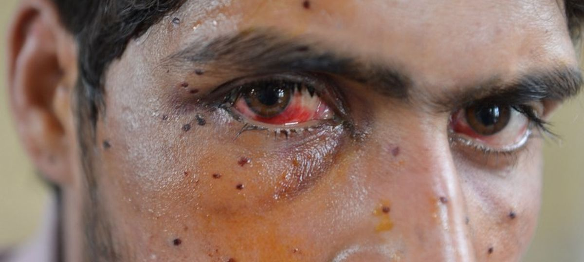Kashmir unrest: No alternative to pellet guns, used as a last resort, says CRPF