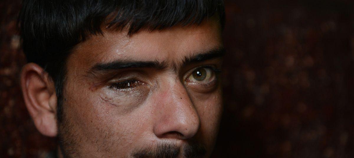 Will the victims of pellet guns in Kashmir ever regain their eyesight?