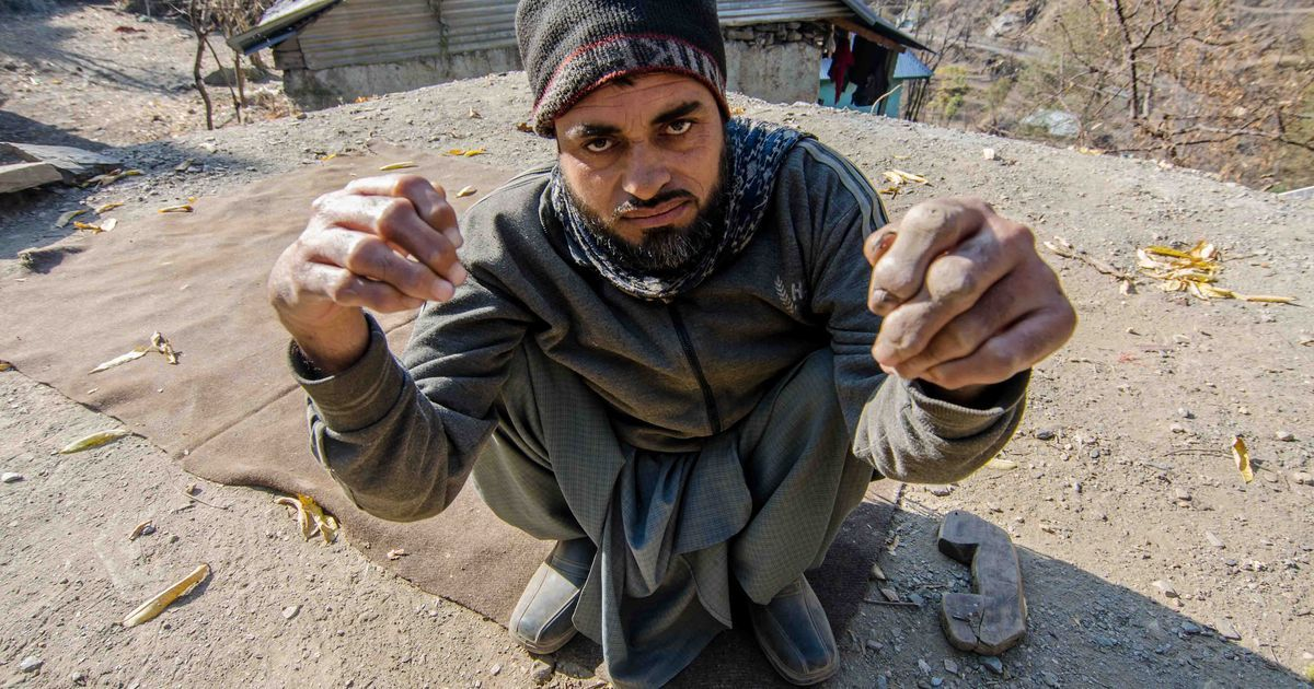 A rare skeletal disorder that has plagued Poonch residents has finally been identified