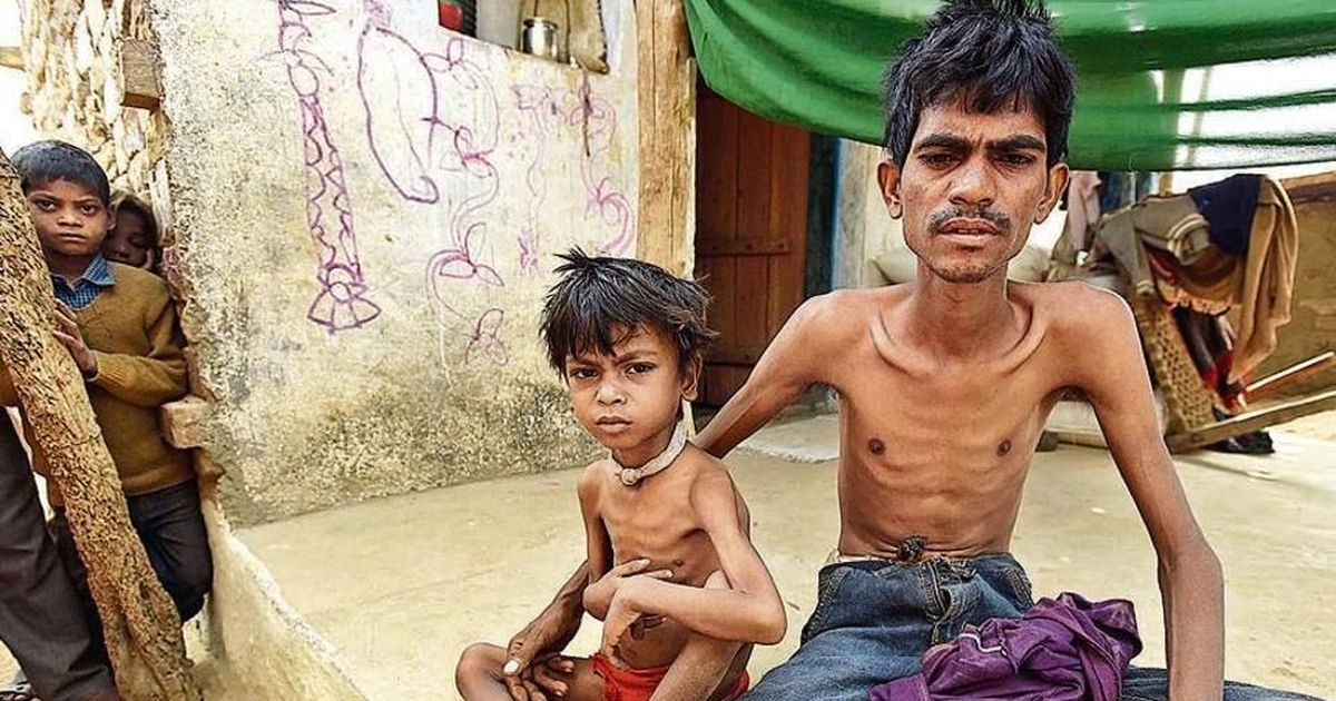 TB patients asked to submit Aadhaar for a compensation scheme that is yet to be finalised
