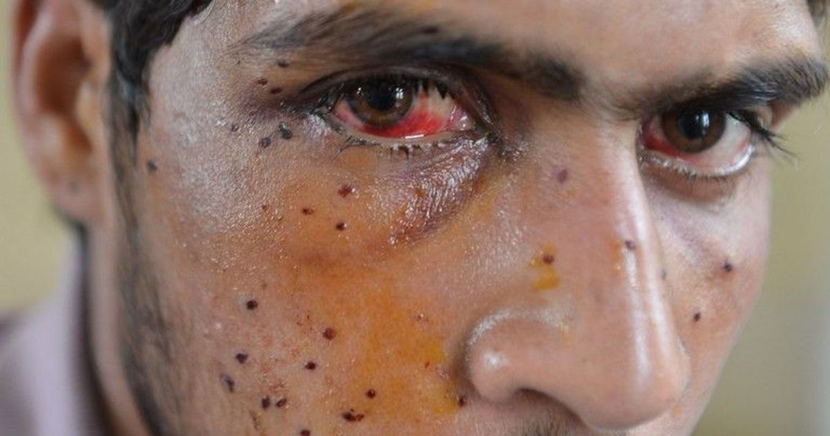 Kashmir: Police order admits misuse of pump action guns against protestors, says report