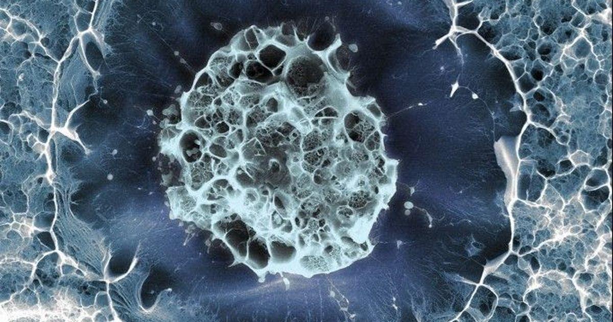 Lab notes: New method to rejuvenate aged stem cells to make them suitable for transplantation