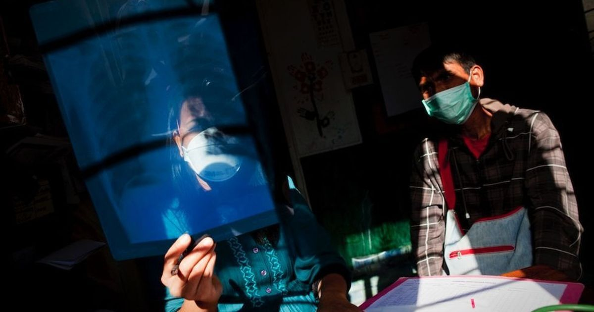 Failing to notify TB cases can land doctors in jail. But will this help India eliminate the disease?