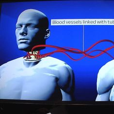 Video: How the world's first head transplant might take place (but is it junk science?)