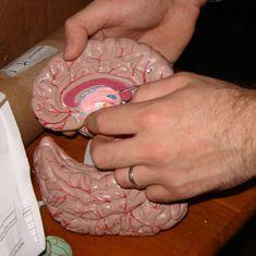 When you split the brain, do you split the person?
