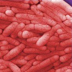 Lab notes: Scientists decipher how Salmonella survives in human cells