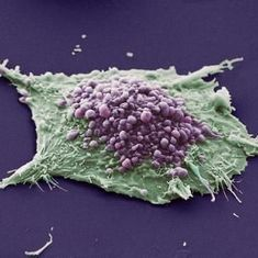 Lab notes: Scientists track cancer risk associated with epigenetic changes during aging