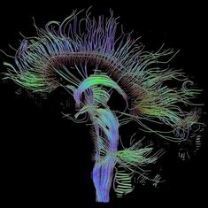 Electrical stimulation paired with cognitive training can boost memory